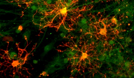 Cell culture containing oligodendrocytes with cortical neurons.
